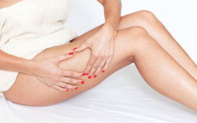 Six trucs et astuces qui peuvent aider à camoufler votre cellulite